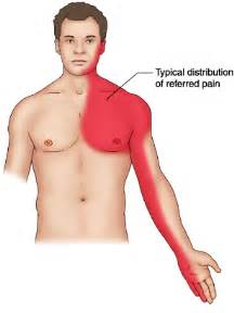 Angina pectoris definition medical disability guidelines