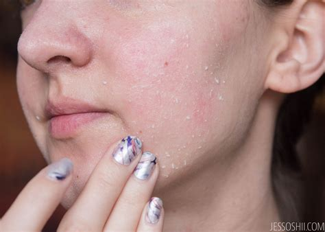 The Shop Drops Of Youth Youth review the shop drops of youth liquid peel how to