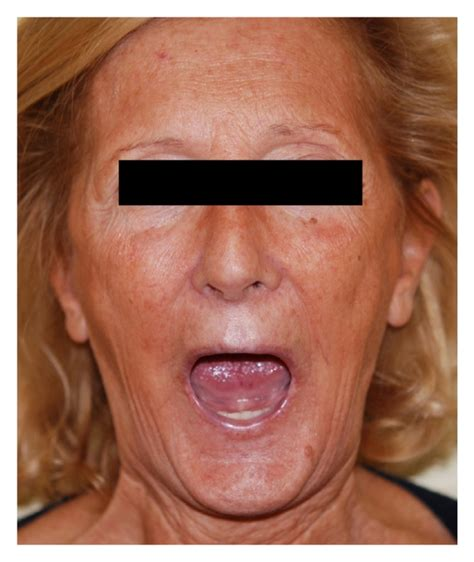 48 year old woman a 48 year old woman before treatment
