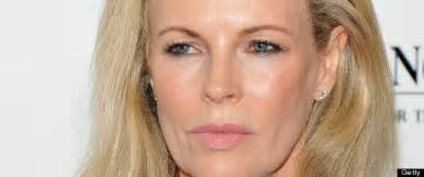 Basinger Skincare Model by Plastic Surgery Basinger And 11 Other Say No Way