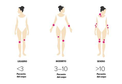 psoriasi guttata alimentazione la psoriasi cos 232 sintomi cause cure e consigli