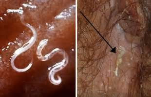 how to get rid of worms in humans home remedies parasites tackk