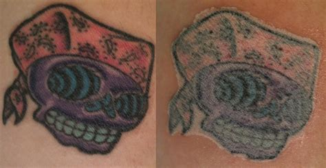 tca tattoo removal pictures pin tca peels before and after removal pictures on