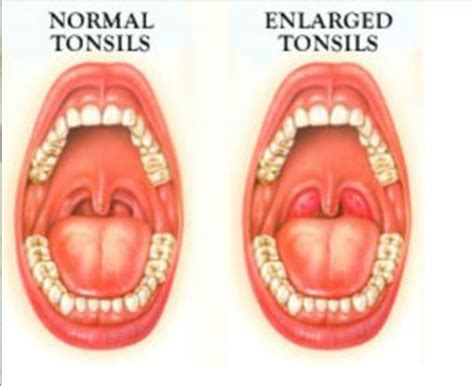 Tongsis Normal remedies for tonsils remedies