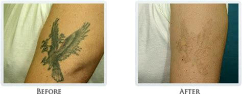 tattoo removal skin graft removal process portland laser removal