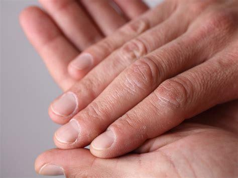 dark line on fingernail how to treat an ingrown fingernail