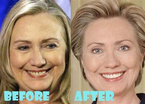 did hillary clinton get a facelift did hillary clinton have plastic surgery 2014