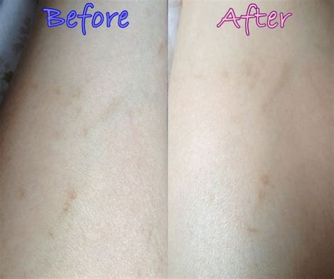 Bio Stretch Marks yvonne and playground singapore and lifestyle event and review bio for