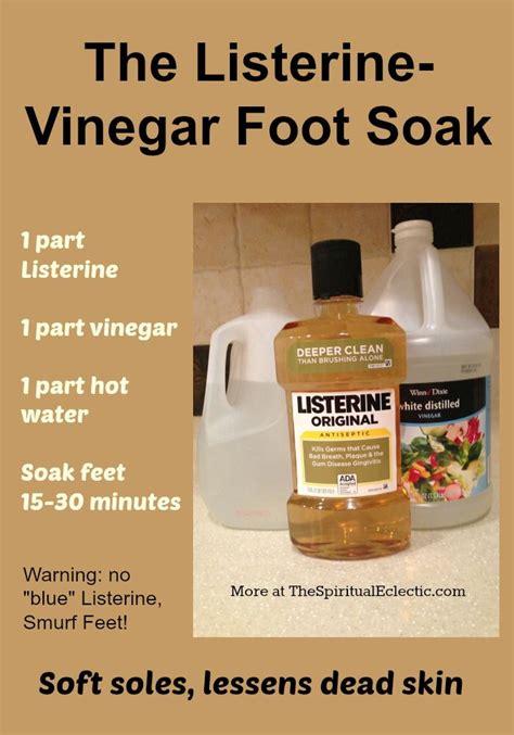 Vinegar Detox Bath Dangers by 17 Best Ideas About Foot Soak Vinegar On Soft