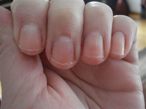 is f1030 the first ever medically tested and healthy nails www imgkid the image kid has it