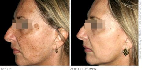 laser skin resurfacing procedures cost and benefits