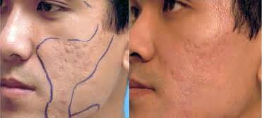 Acne Scar Treatment With Laser » Home Design 2017