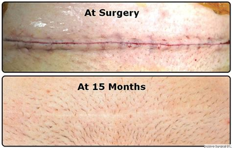 plus size c section incision incisive surgical insorb absorbable skin incisive
