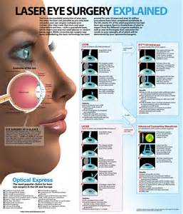 what is a blind procedure your questions answered laser eye surgery