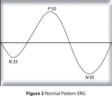 pattern reversal glaucoma electrophysiology in glaucoma a review