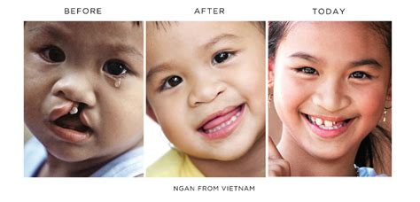 Turns Back On Operation Smile by Operation Smile Before And After Www Pixshark