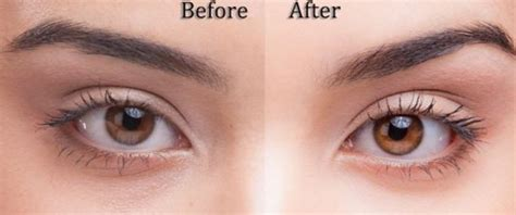 Do Change Color After Detox by Eye Color Change Before And After Www Pixshark