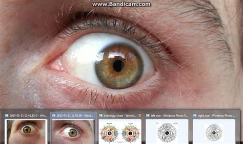 S Eye Color Changing After Detoxing by Fruit Cleanse Water Fast Herbal Detox Introduction To