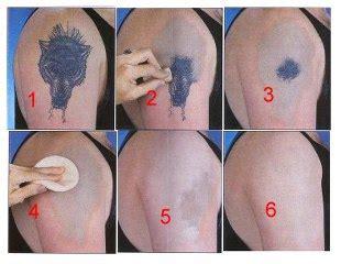 does tattoo removal lotion work d 246 vme sildirme ile ilgili yardım 187 sayfa 1 1