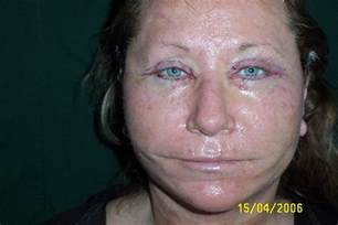 home chemical peel day 3 up chemical peel eyelid surgery