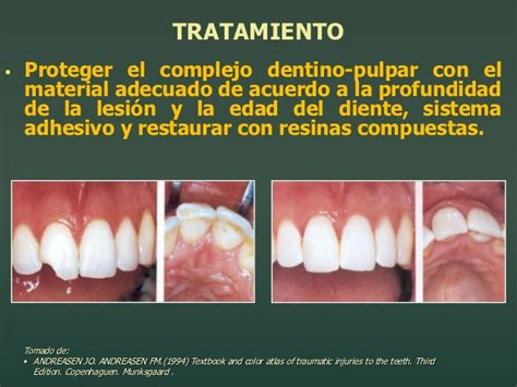 libro la dinasta del diente traumatismos