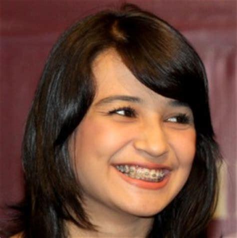 Biaya Pemutihan Gigi Bleaching kosmetik gigi ala selebritis shiny smile dental clinic