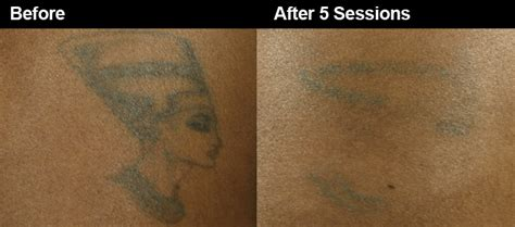 tattoo removal on african american skin laser removal safe for skin wifh