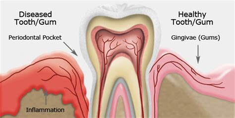 gingivitis treatment gum disease treatment frank dental
