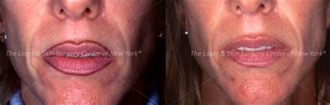 new tattoo removal procedure laser removal nyc laser skin surgery center of