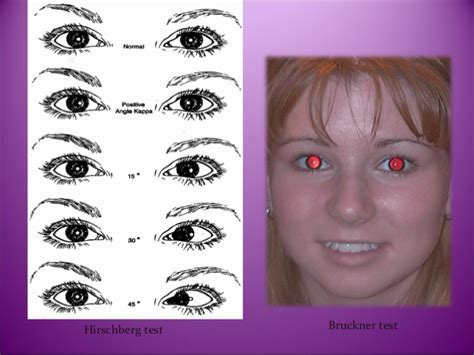 ambliopia test introduction assessment and management of amblyopia