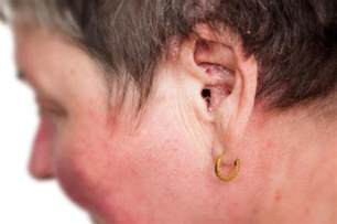 psoriasis in the ears symptoms and treatment