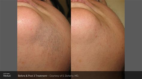 s laser hair removal laser hair removal of unwanted hair in buffalo healthy