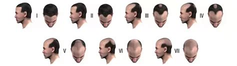pattern baldness meaning i am 23 years old and the crown of my head hair has