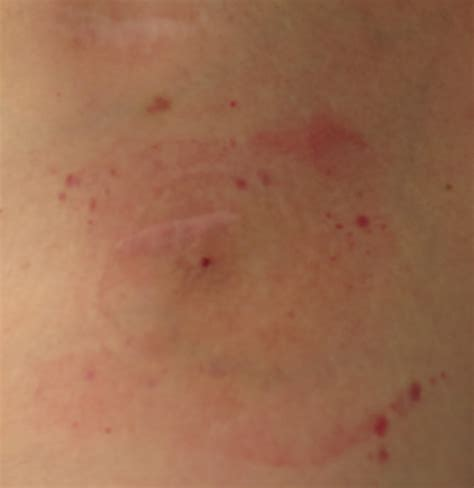 rash on lymphoma skin rash pictures