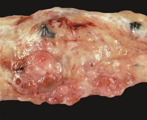 benign tumor on tumor tumor benign