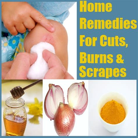 home remedies for cuts burns and scrapes diy find home