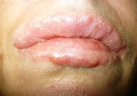 bumps on a bumps on causes treatment pictures