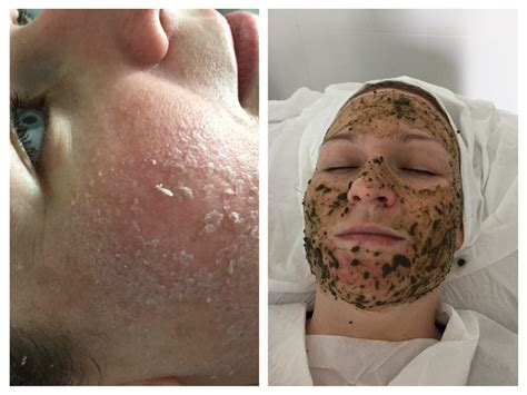 Skin Shedding by How Does Herbal Skin Peeling Work Fallah