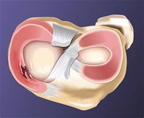dolore ginocchio sinistro interno lesi 243 n menisco de la rodilla interno o externo cirug 237 a