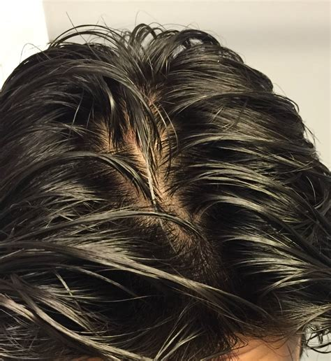 male fine hair wet crown is my crown thinning