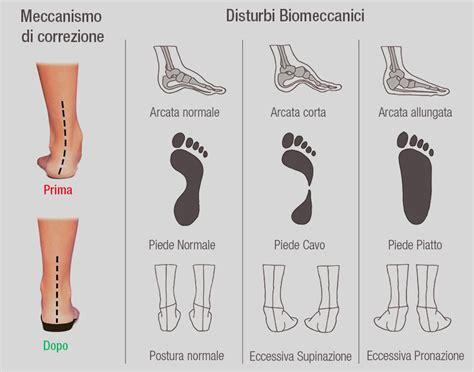 dolore arco plantare interno plantare ortopedico piede piatto piede pronato vasyli 190