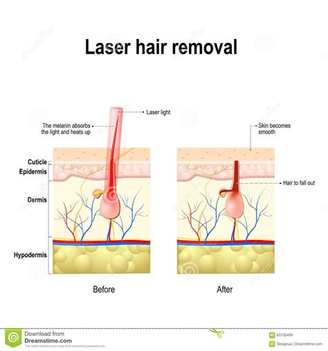laser light hair removal laser hair removal vector diagram stock vector image