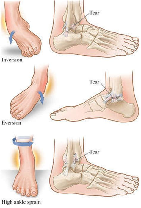 how do you your how do you if you sprained your ankle learn from doctors on healthtap