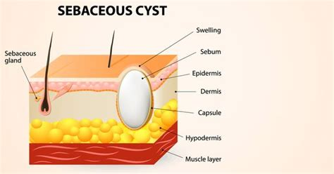 15 effective home remedies to treat sebaceous cyst