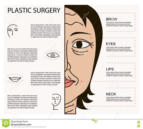 surgery information understanding surgery surgery a to z cosmetic plastic facial surgery poster stock vector