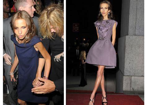 Dontella Versace Allegra Consumed By Anorexia by The Gallery For Gt Gianni Allegra Versace