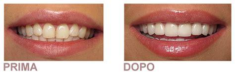apparecchi dentali interni trattamento sbiancante denti come sbiancare i denti