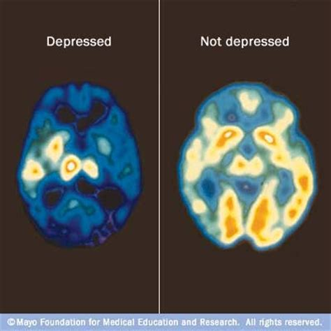 Brains Not by Severe Depression Could Shrink Your Brain Medimoon