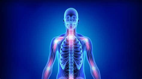 Severe Rheumatoid Arthritis; Signs and Symptoms   Everyday