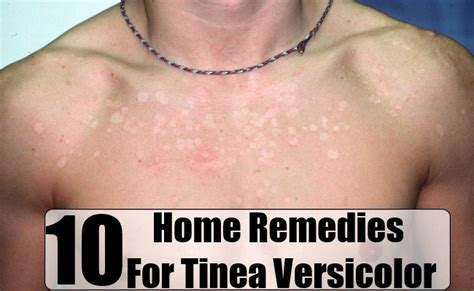 best treatment tinea versicolor 10 home remedies for tinea versicolor health care a to z